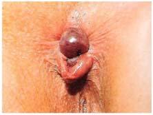 Tromboze Dış Hemoroid