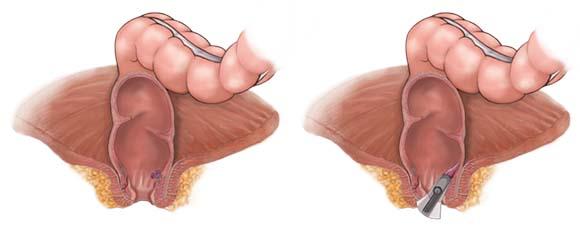 İç (İnternal) Hemoroidlerin Tedavisinde BandLigasyon Uygulaması